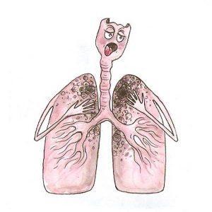 tuberkuleozi1